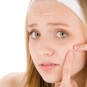 Gözenek Temizleme İçin 4 Doğal Yöntem