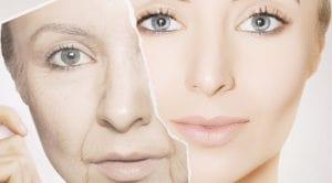 Cilt Yaşlanmasının Sebepleri Hakkında Bilinmesi Gerekenler